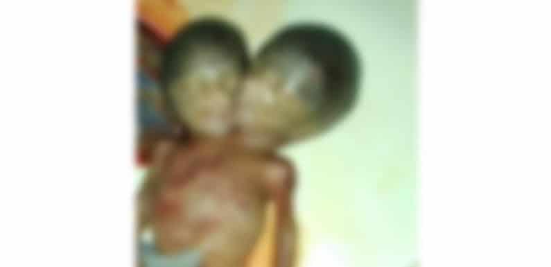 जन्मा दो सिर का अद्भुत बच्चा जन्म के पश्चात नवजात की मौत