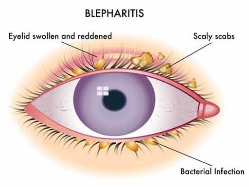 Blepharitis- आखिर कैसे होती है पलकों में सूजन? जानें इसके लक्षण और कारण