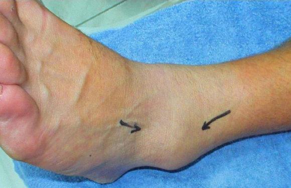 Sprained ankle- जानें टखने की चोट के लक्षण और घरेलू उपाय