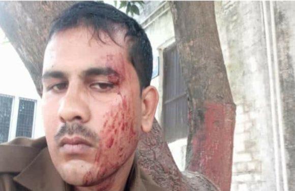 जमीन विवाद में पुलिस टीम पर पथराव,पीआरवी का चालक और एक कांस्टेबल घायल