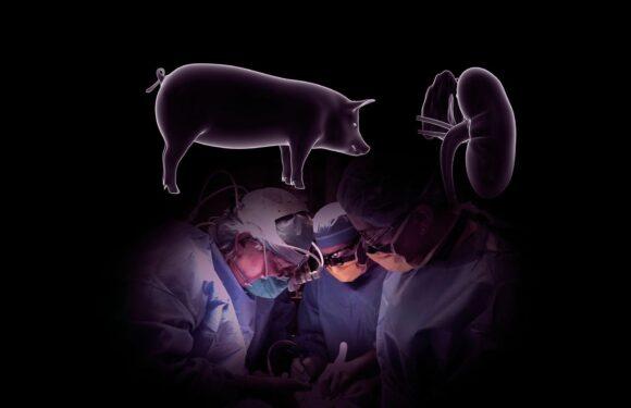 सुअर की किडनी लगा कर इंसान को किया जा सकता है ज़िंदा ?